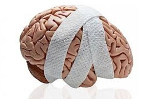 CONCUSSION TREATMENT & MANAGEMENT